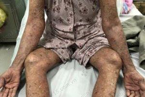 Tự ý dùng thuốc trị gout, cụ bà 83 tuổi nổi phỏng đỏ toàn thân