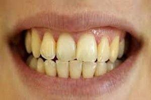 Đây là những thực phẩm mà chị em phải tránh xa ngay nếu không muốn hàm răng bị xỉn màu, vàng ố