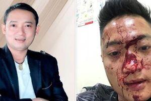 Nghệ sĩ hài Chiến Thắng lên tiếng việc khán giả tố cáo anh thuê vệ sĩ đánh người