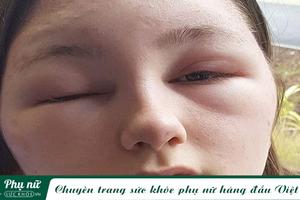 Cô gái 18 tuổi suýt mù vì quên làm một việc trước khi nhuộm tóc, chị em nên lưu ý