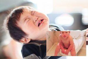 Bé 2 tuổi bị bệnh trĩ, bác sĩ cảnh báo sai lầm tai hại khi cho con ăn nhiều mẹ Việt mắc phải
