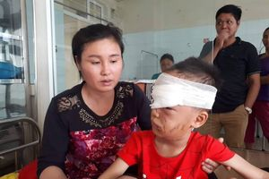 Bé trai 6 tuổi bị chó nhà cắn rách mặt