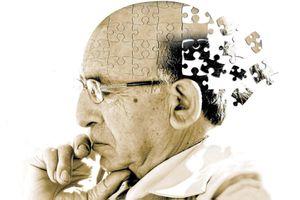 5 thực phẩm giúp ngăn ngừa bệnh Alzheimer