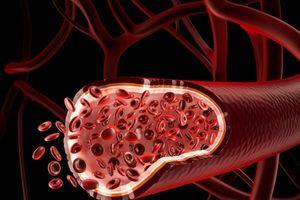 Lần đầu tiên ứng dụng kỹ thuật nối mạch máu không cần kim khâu