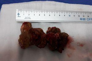 Phẫu thuật thành công cho bệnh nhân có sỏi thận kích thước lớn