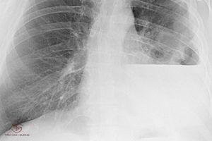 Tràn dịch màng phổi nguyên nhân, triệu chứng và phác đồ điều trị an toàn