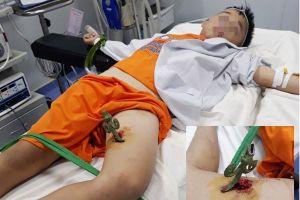 Bé trai 9 tuổi bị mũi sắt hàng rào đâm thủng đùi