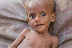 Chiến tranh Yemen: Cái chết giáng lên đầu 85.000 em nhỏ