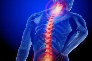Những cơn đau lưng nào bắt buộc phải đi khám bác sĩ?