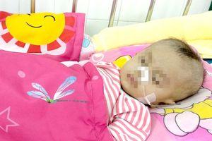 Tiên lượng 90% tử vong, bé 8 tháng tuổi bị hẹp khí quản được cứu sống ngoạn mục