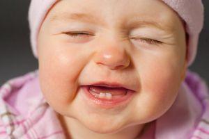 Giải đáp thắc mắc trẻ chậm mọc răng có phải do thiếu canxi?