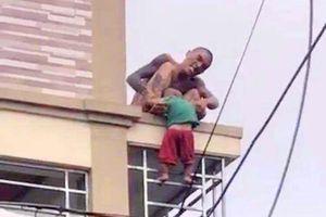 Sức khỏe của bé trai hơn 1 tuổi bị cha ném từ tầng 3 xuống hiện ra sao?