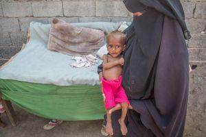 85.000 trẻ em chết đói trong cuộc nội chiến Yemen