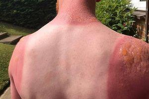 Uống 5 loại thuốc không rõ nguồn gốc, bệnh nhân mắc chứng cứ ra nắng là bỏng da