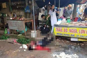 Nghi phạm bắn phụ nữ bán đậu đã chết tại bệnh viện