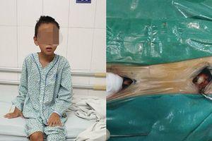 Chỉ nốt mụn nhỏ cha mẹ không ngờ con trai 9 tuổi mắc bệnh nguy hiểm