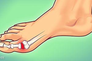 Lời khuyên của bác sĩ để giảm nỗi đau bệnh gout