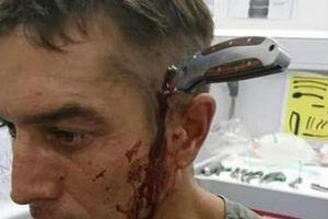 Bị dao đâm xuyên đầu vẫn bình tĩnh đạp xe đến bệnh viện cầu cứu