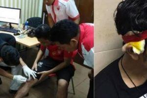 Sốc: CĐV Myanmar bị cướp, đánh dã man, cảnh sát Malaysia thờ ơ