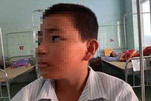 Vụ cô giáo phạt trò 231 cái tát: Quy định đã có từ lâu, từng có 9-10 học sinh 'lĩnh' tổng cộng hơn 900 bạt tai?