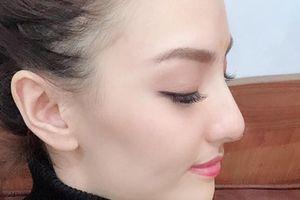 Người mẫu Hồng Quế công khai mới sửa mũi