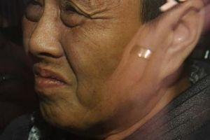 Nghi phạm gốc Việt bị bắt, vẫn tìm thấy kim khâu trong dâu tây