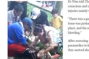 Bé trai Singapore sống sót sau khi ngã xuống từ tầng 11