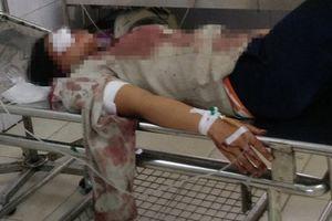 Bắc Giang: Chồng chém vợ dã man rồi đến UBND xã đầu thú