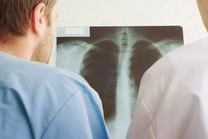 Bệnh phổi và nguy cơ suy giảm nhận thức
