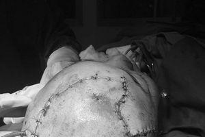 Nối vi phẫu cho bệnh nhân mất mảng da đầu