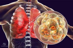 Viêm phổi thùy là gì? Phác đồ điều trị viêm phổi thùy tại nhà