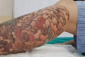 Cô gái loét chân, hở gân cơ vì bị bỏng khi xóa hình xăm
