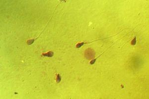 Bất chấp tranh cãi, đại học Harvard tuyên bố bắt đầu sửa gene tinh trùng người