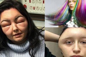 Sưng đầu, mặt biến dạng vì tự nhuộm tóc tại nhà