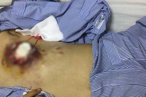 Ngực chảy mủ, biến dạng vì điều trị ung thư bằng thuốc nam