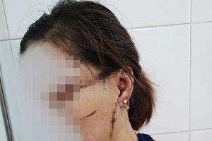 Cắt gân vợ vì ghen, người đàn ông lĩnh 27 tháng tù