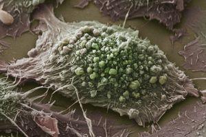 Các nhà khoa học tìm ra cách diệt ung thư trong vài giây