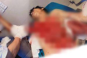 Tai nạn kinh hoàng: Ngã vào máy bóc gỗ, người đàn ông bị lột toàn bộ da phần ngực và tay