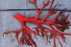 Bác sĩ hoảng hốt khi bệnh nhân đang điều trị tim thì ho ra cả phổi