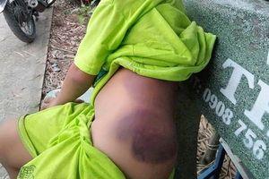 Bé trai lớp 1 khuyết tật bị cô đánh bầm tím người