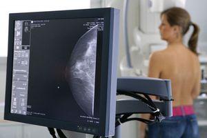 Các xét nghiệm tầm soát ung thư chỉ dành cho nữ
