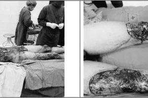 Hãi hùng 3 người bị tai nạn lột da, bác sĩ nỗ lực ghép da cứu bệnh nhân