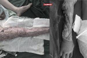 12 tuổi sang Trung Quốc kiếm sống, cậu bé bị lóc da khắp người do tai nạn lao động