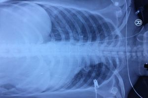 Bệnh nhân bị cướp đâm thủng tim gan được cứu sống