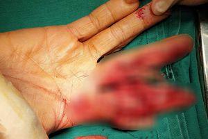 Dập nát bàn tay vì bị cuốn vào máy thái thịt