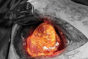 Cứu sống một phụ nữ bị kẻ gian đột nhập đâm thấu tim, gan