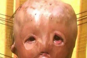 Nhói lòng thư gửi ông già Noel của cậu bé 5 tuổi mất mặt vì hỏa hoạn
