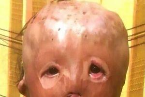Bức thư đẫm nước mắt của cậu bé 5 tuổi hỏi xin ông già Noel một … khuôn mặt mới