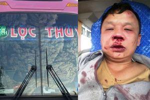 Bị tố hành hung lái xe nhập viện, chủ xe Lộc Thủy nói gì?