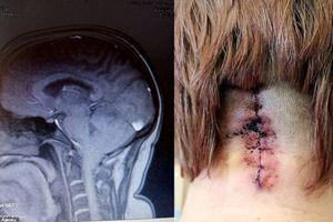 Đau đầu tưởng cúm, đi khám mới phát hiện não đang 'trôi xuống' cổ